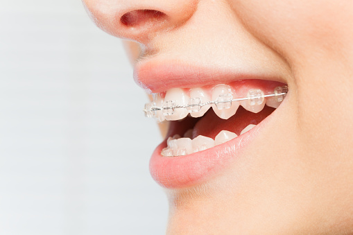 It is Very Important to Keep Your Teeth Clean After Completing Braces