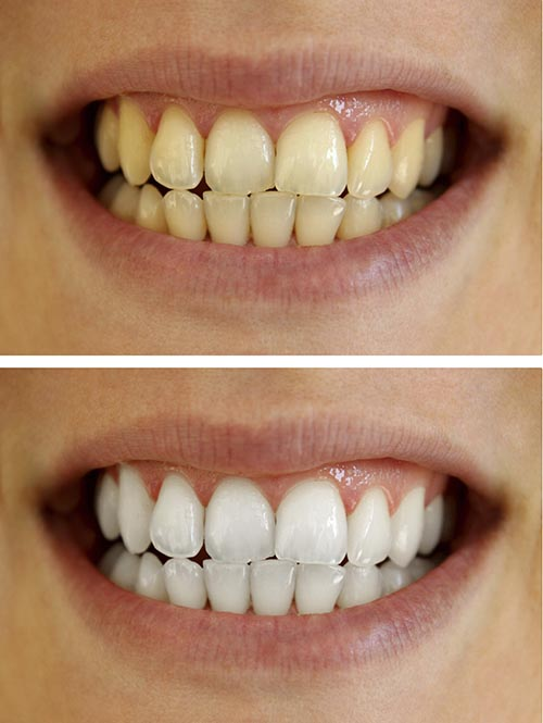 A patients before and after picture of a teeth whitening treatment.