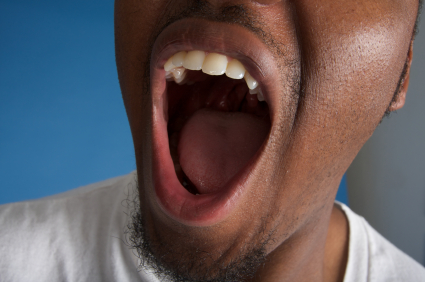 Effects of Dry Mouth on Your Teeth and Gums