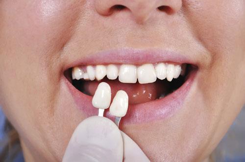 Teeth Veneers North Syracuse NY | Mahar Dental | Cosmetic Dentist